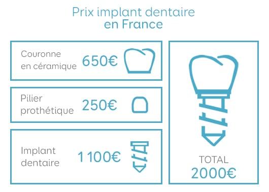 implant dentaire prix moyen